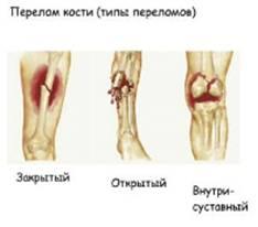 Травмы костей и суставов первая помощь сообщение эндопротезирование тазобедренных суставов им пирогова